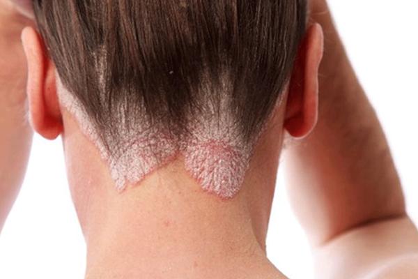 Nấm da đầu khiến người bệnh mất tự tin trầm trọng
