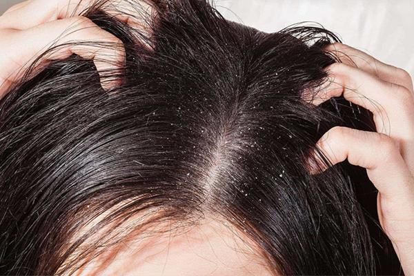 Gàu xuất hiện là biểu hiện đầu tiên của bệnh nấm da đầu