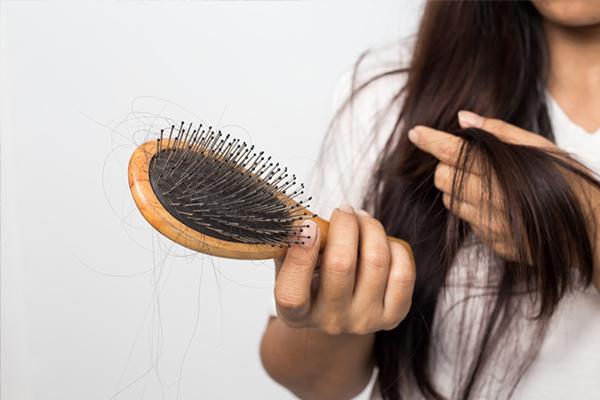 Tóc rụng nhiều là biểu hiện của bệnh ngày càng nặng hơn