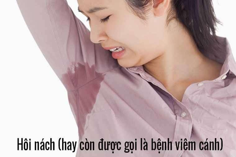 Hôi nách (ảnh minh họa)
