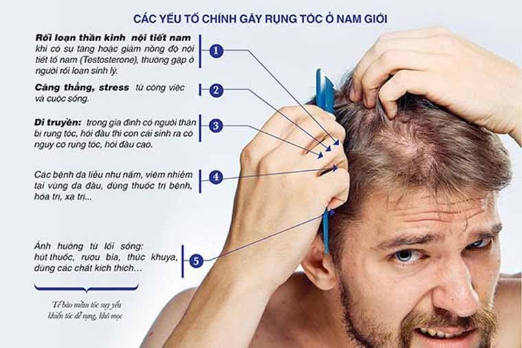 Các yếu tố gây rụng tóc ở nam giới