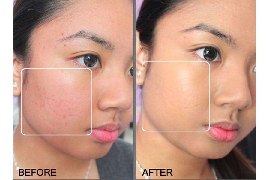 Neutrogena Skin Clearing Oil-Free Makeup che khuyết điểm khá tốt