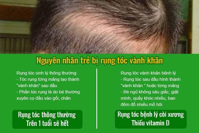 Nguyên nhân trẻ bị rụng tóc vành khăn