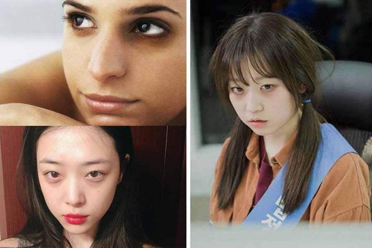 Trị thâm mắt là vấn đề được nhiều bạn trẻ quan tâm