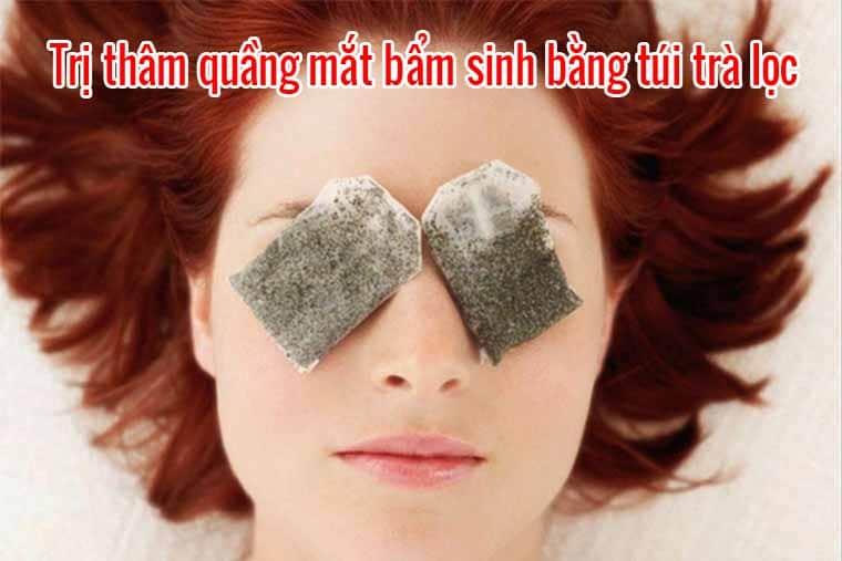 Trị thâm quầng mắt bẩm sinh bằng túi trà lọc