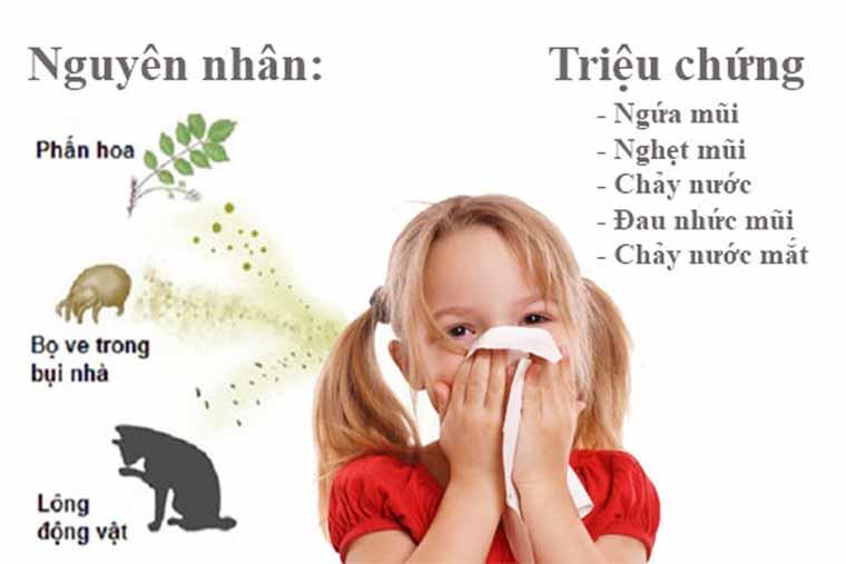 Bệnh viêm mũi dị ứng ở trẻ em và những điều mẹ cần biết