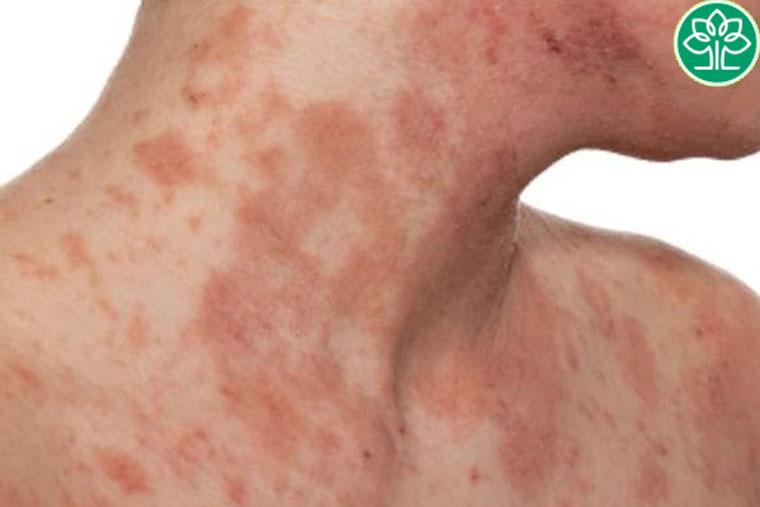 Hiện nay vẫn chưa tìm ra được nguyên nhân chính xác gây viêm da cơ địa