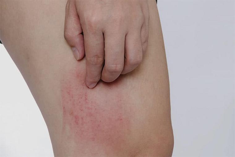 nổi mề đay khi ra mồ hôi là dấu hiệu của bệnh dị ứng da