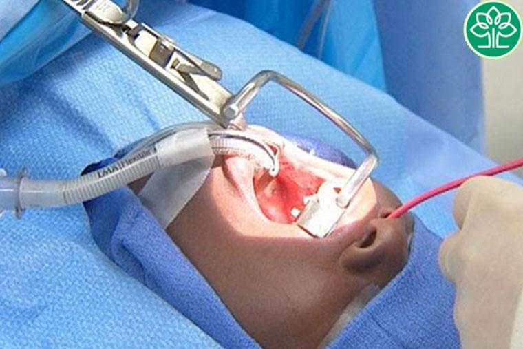 Phương pháp cắt amidan bằng coblator