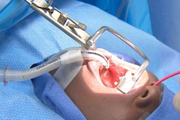 Hiện nay có khá nhiều các phương pháp cắt amidan vậy cắt amidan bằng phương pháp nào tốt nhất hiện nay ?