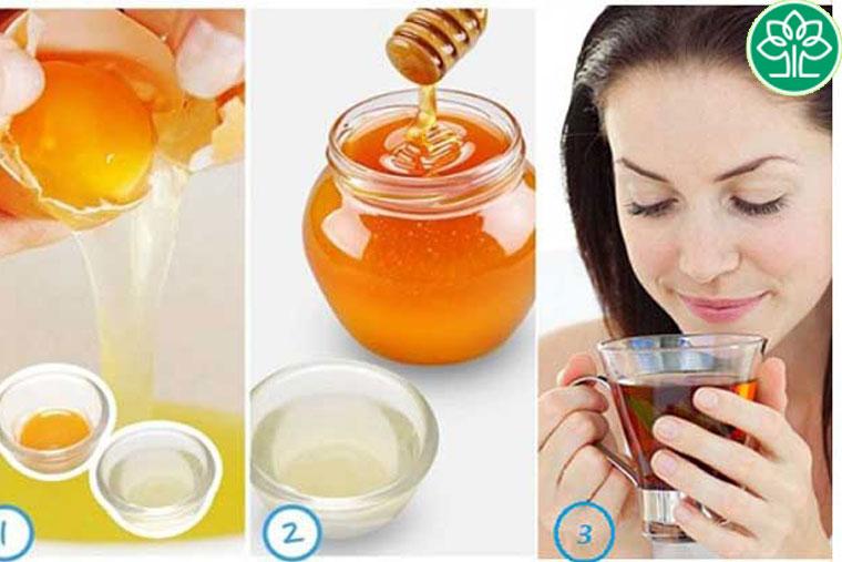 Cách chữa VHH bằng mật ong