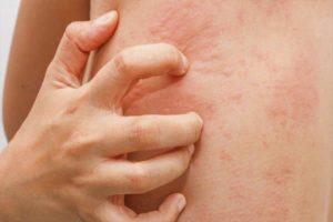 Biểu hiện nổi mề đay trên cơ thể người bệnh