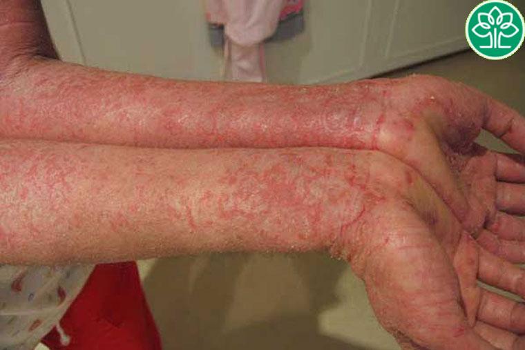 Người bệnh nên kiểm tra thử mình có dị ứng hay mẫn cảm với trầu không trước khi áp dụng các phương pháp điều trị nêu trên