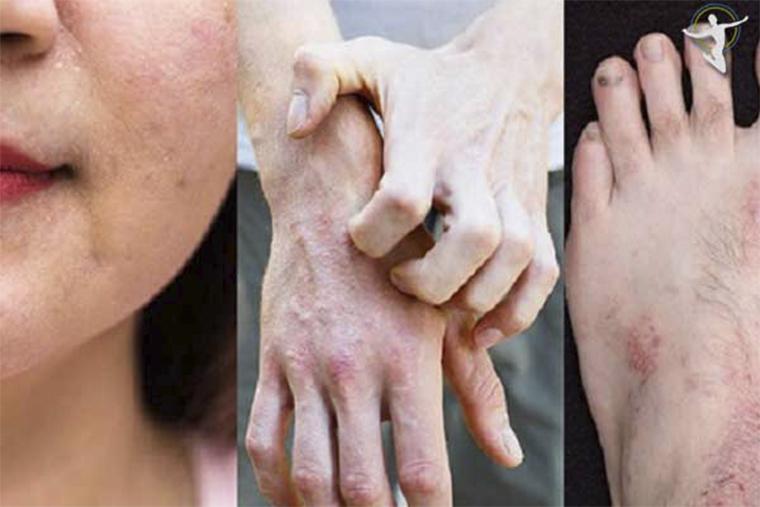 Cần lưu ý sử dụng nguồn liệu sạch để chữa viêm da cơ địa