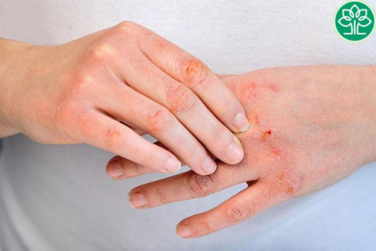 Viêm da cơ địa có thể gây sạm da nếu bị khô, tổn thương lâu ngày