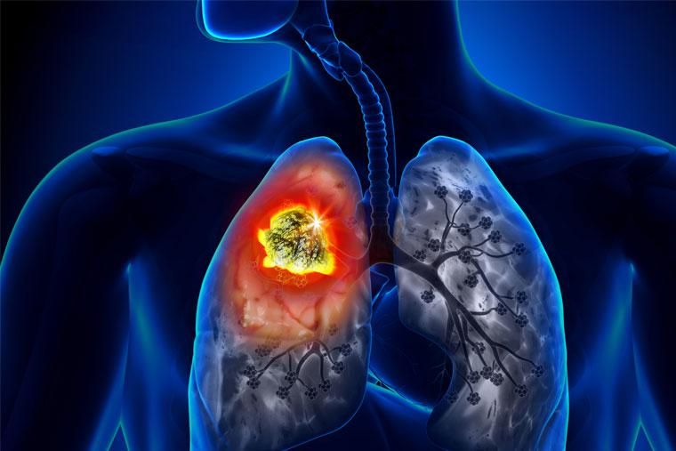 Ung thư phổi có thể là nguyên nhân gây bệnh