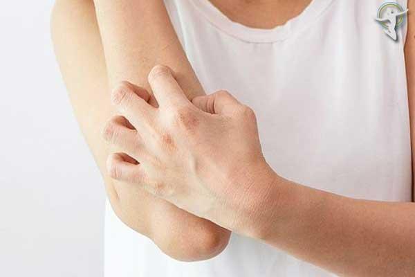 Không nên gãi, tác động mạnh đến vùng da bị nổi mề đay