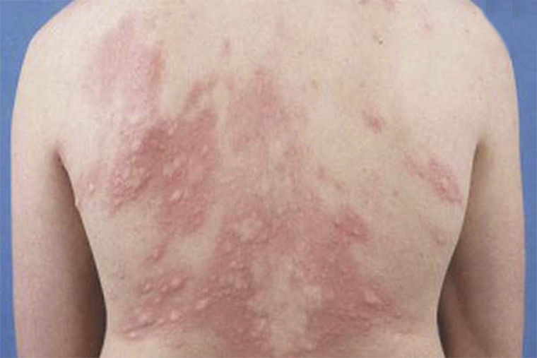 Tình trạng tổn thương trên da do bệnh