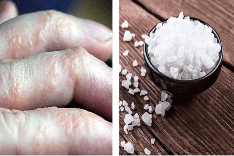 Dùng muối ăn là một trong những mẹo chữa bệnh tổ đỉa được sử dụng phổ biến và hiệu quả