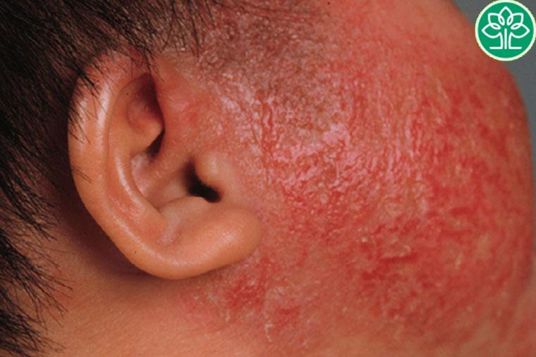 Viêm da cơ địa và nguyên nhân gây bệnh?