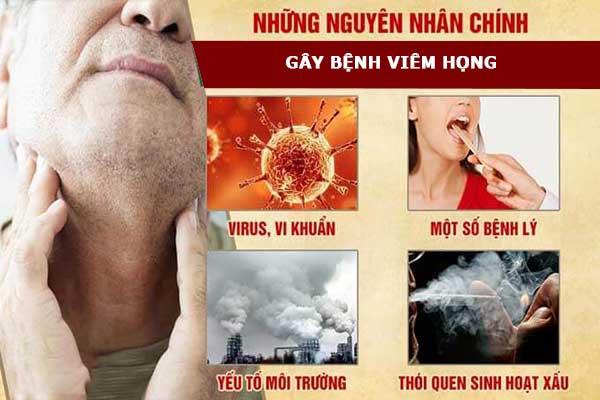 4 nguyên nhân chính gây bệnh đau rát họng