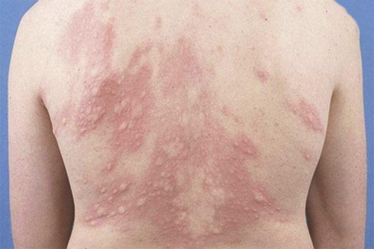 Bệnh mề đay có thể xuất hiện các triệu chứng mẩn ngứa ở khắp cơ thể