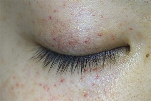Nổi mề đay quanh mắt là một dạng dị ứng ngoài da ở khu vực mắt
