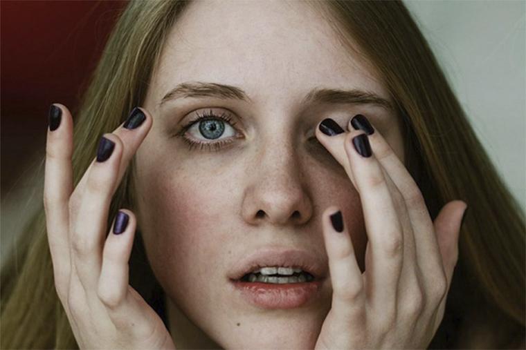 Dụi mắt gây kích ứng vùng da và làm nổi mề đay