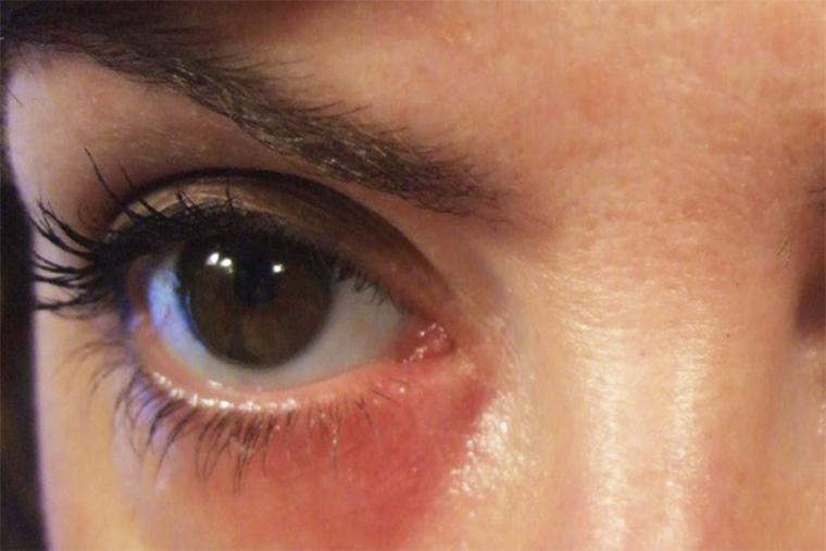 Dùng thuốc kháng Histamin để giảm ngứa, mẩn đỏ quanh mắt