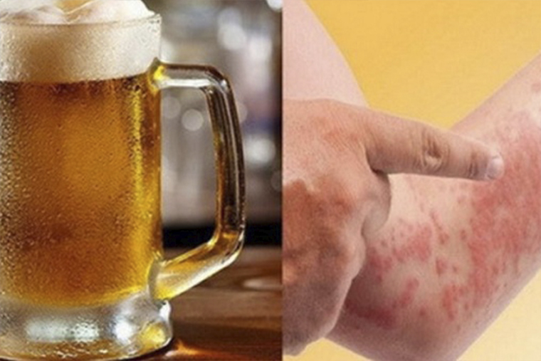 Trong bia có nhiều thành phần gây kích ứng cho da