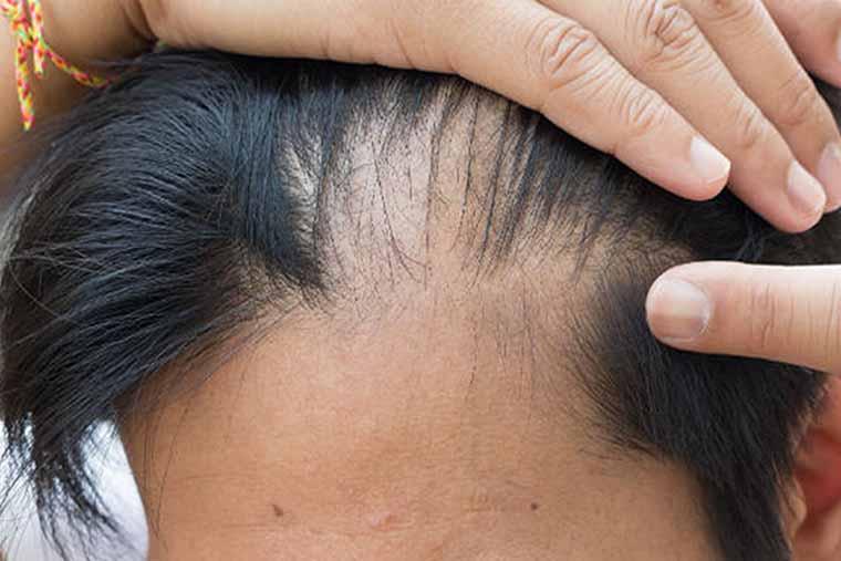 rụng tóc ở nam giới gây mất thẩm mỹ