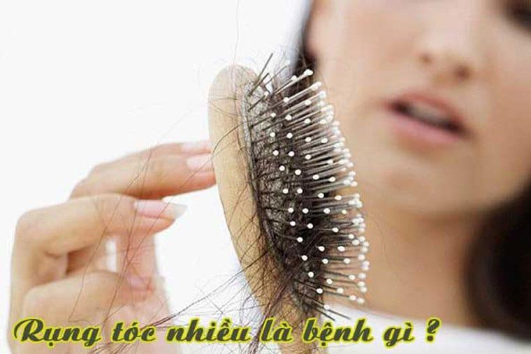 Rụng tóc nhiều là thiếu chất gì