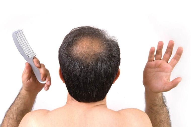 Nguyên nhân chủ yếu gây rụng tóc ở nam giới là do lượng testosterone suy giảm