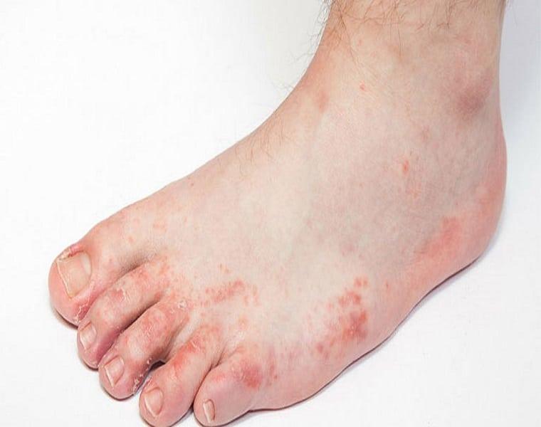 Các nốt mụn nước mọc khu trú ở các ngón chân