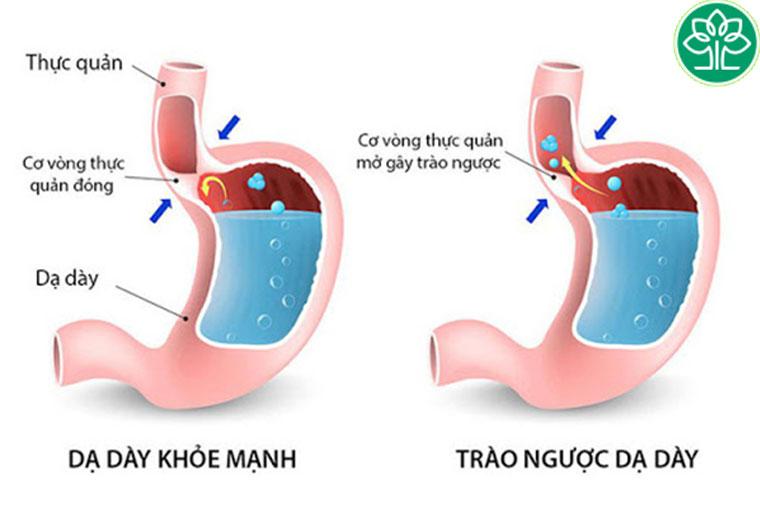 Thuốc Nexium 24hr rất hữu hiệu trong việc trị ợ nóng, ợ chua, trào ngược dạ dày, viêm thực quản