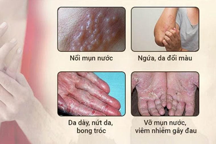 Nổi mụn nước, ngứa, nứt da, bong tróc là những triệu chứng điển hình của bệnh
