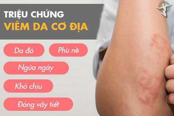 Các triệu chứng của viêm da cơ địa