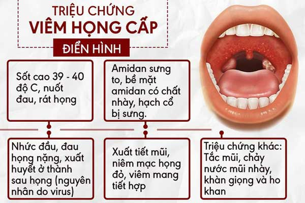 Các triệu chứng của bệnh đau họng cấp