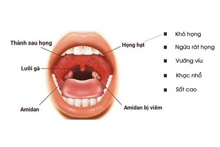 Những biểu hiện của bệnh VHH