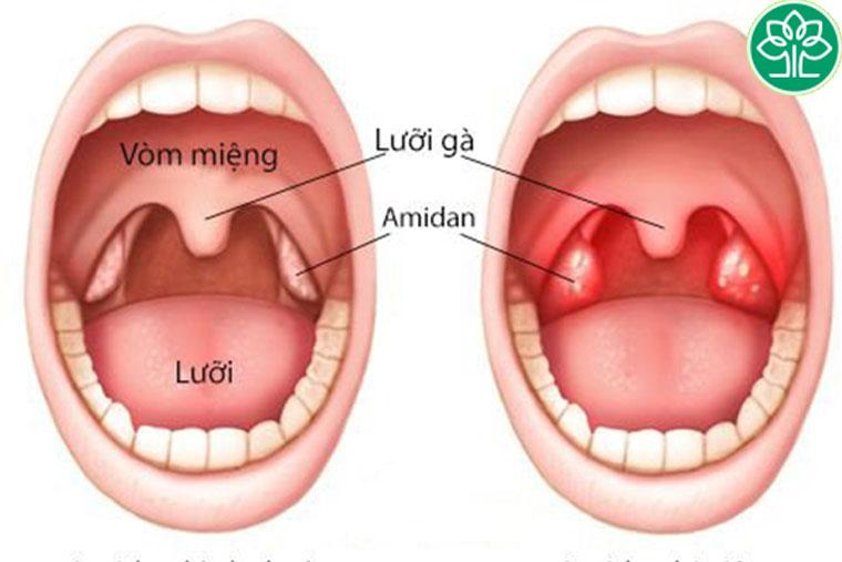Vị trí của amidan trong khoang miệng