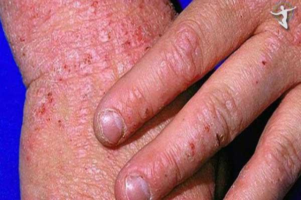 Những người bị viêm da cơ địa có nguy cơ mắc bệnh cao hơn