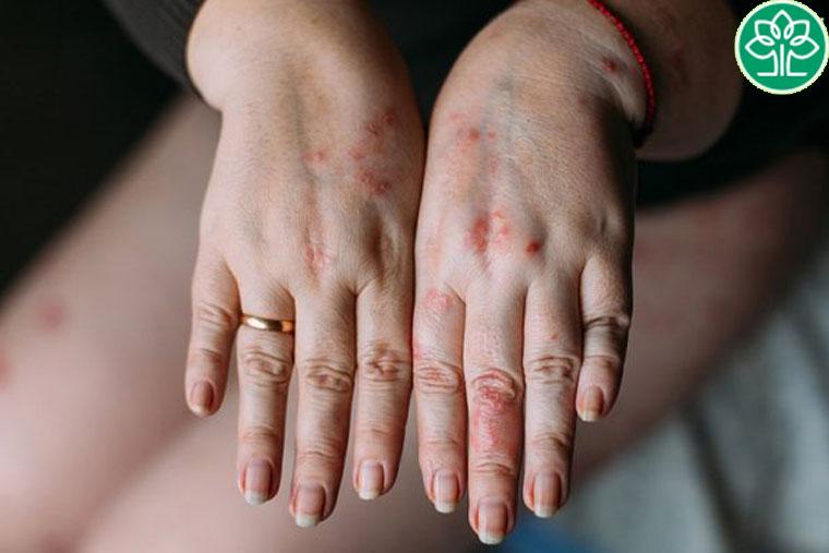 Hình ảnh bệnh nhân bị viêm da cơ địa