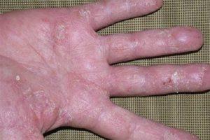 Viêm da cơ địa mất dấu vân tay có thể điều trị bằng nhiều cách