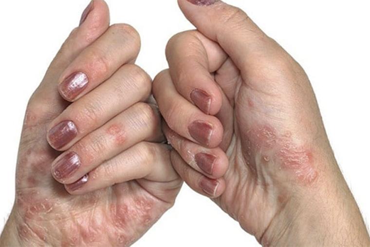 Cần chăm sóc da tay đúng cách để hạn chế viêm da cơ địa ngón tay