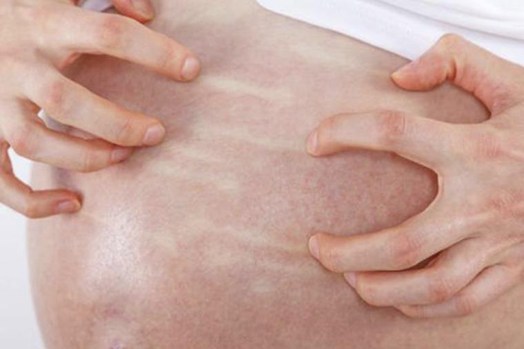 Bệnh viêm da dị ứng có thể hồi phục khi được điều trị đúng cách