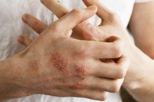 Viêm da cơ địa ở người lớn hoàn toàn có thể chữa khỏi nếu thực hiện đúng phương pháp