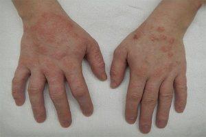 Viêm da cơ địa ở tay có thể chữa trị bằng thuốc kháng Histamin
