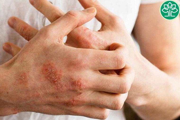 Viêm da cơ địa ở vùng bàn tay