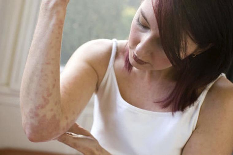 Viêm da cơ địa sau khi sinh cần tránh ngâm mình trong nước lạnh để hạn chế ngứa ngáy
