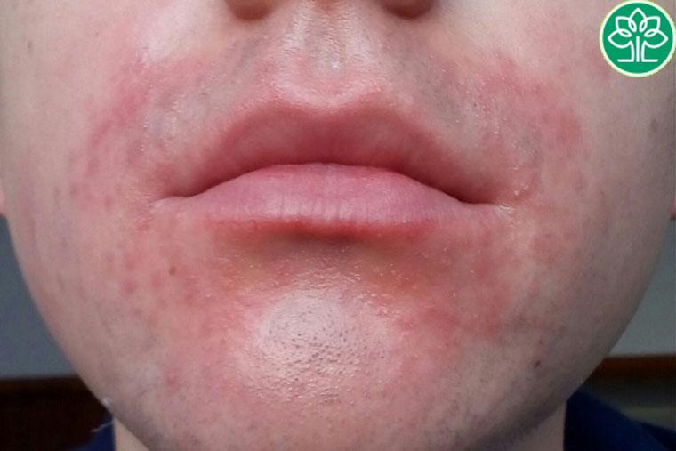 Viêm da cơ địa quanh miệng có thể xuất hiện ở bất cứ đối tượng nào